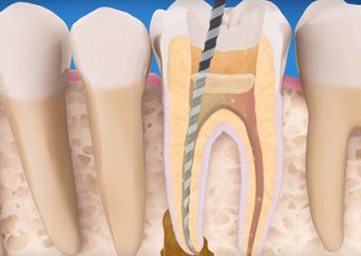 bfc_endodontics_price