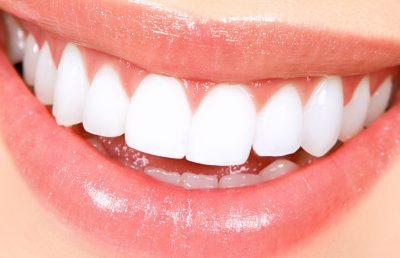 bfc_orthodontics_price