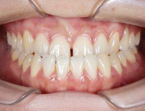 ฟันล่างคร่อมฟันบน